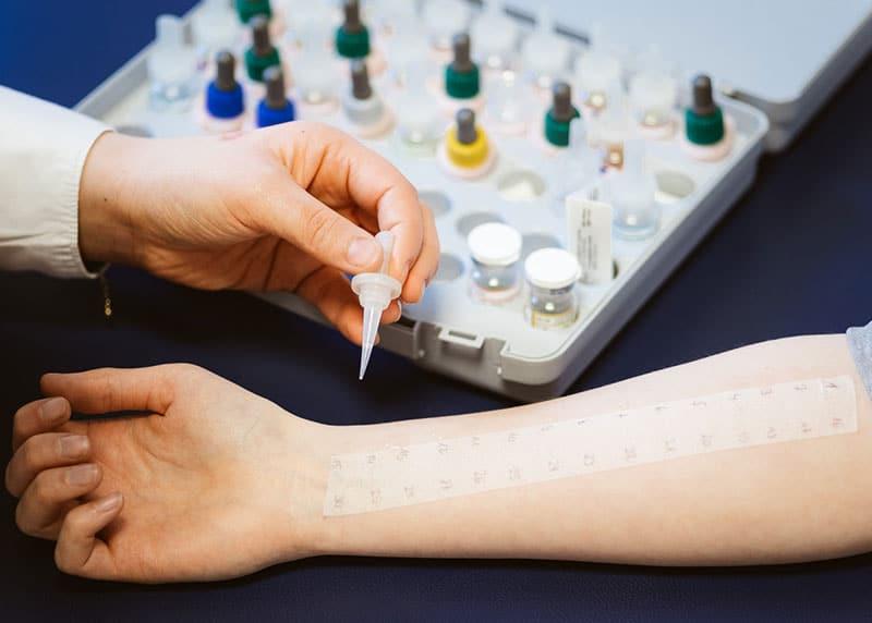 In unserer Praxis werden alle Hauterkrankungen diagnostiziert und behandelt